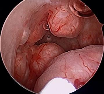 Leiomyomatosis Endometrial 4 copia
